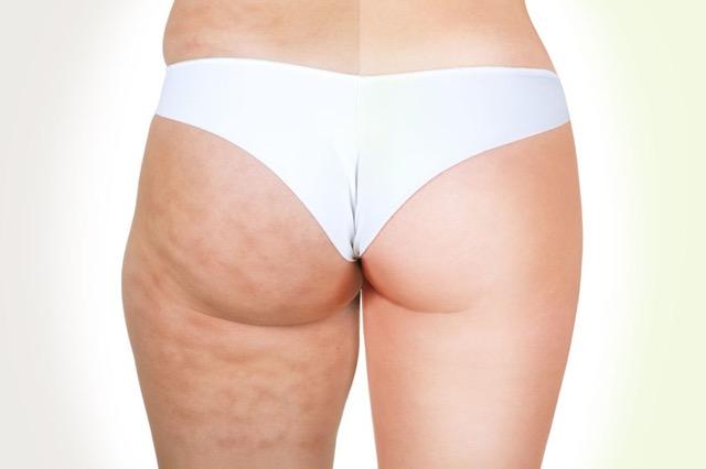 Cause e rimedi efficaci, contro cellulite e grasso  localizzato
